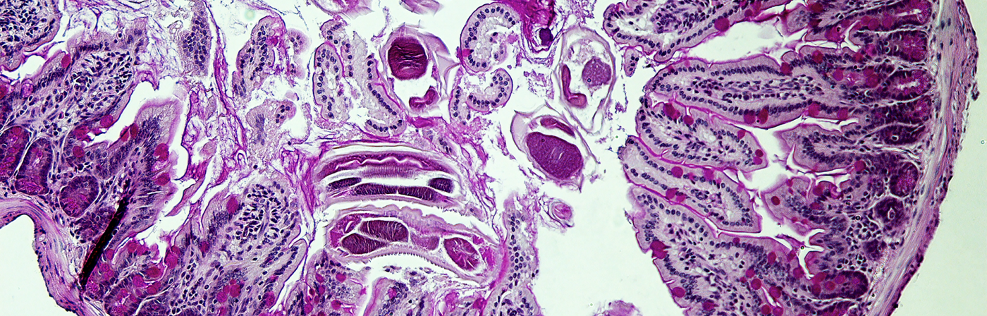 Parasite infection of the mouse small intestine